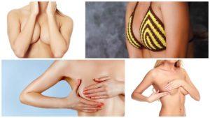 Cuanta menos piel sea necesario quitar menor será la cicatriz de la mastopexia.