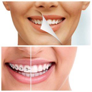 Las fundas se utilizan para sustituir la corona dental dañada.