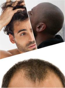 Para obtener un certero diagnóstico de una pérdida de cabello así, es recomendable acudir al especialista.