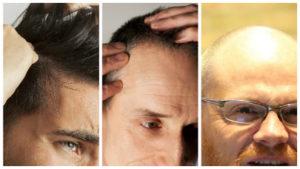 Hay diversos tratamientos para combatir la alopecia androgenética, siendo algunos más efectivos que otros.
