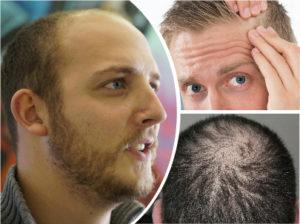 La alopecia androgenética o androgénica es la más habitual de todas y es debida a motivos genéticos.