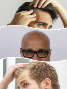 La alopecia areata se distingue por la aparición de parches, pudiendo derivar en una completa caída capilar.