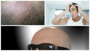 Tanto la areata como la alopecia difusa suelen encontrar solución al desaparecer el motivo que las provocó.