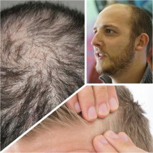 De todos los tipos de alopecia, la androgenética o androgénica es la que más difícil solución presenta.