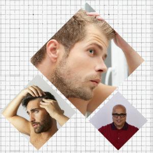 Difusa, areata o cicatricial son otros de los tipos de alopecia existentes, cada uno con su tratamiento específico.