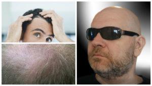 El propio sistema inmunológico del cuerpo humano es el principal causante de esta alopecia universal.