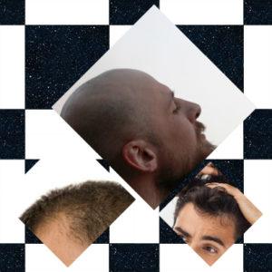 A pesar de que son varios los posibles tratamientos, es complicado hallar la solución para la alopecia universal.