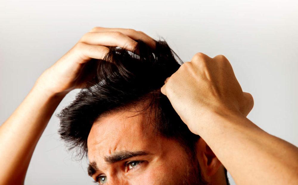 Caída del pelo o alopecia