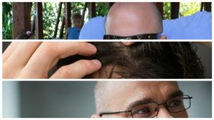 Vía tópica, el minoxidil es uno de los medicamentos que con mayor frecuencia se emplean para la alopecia.