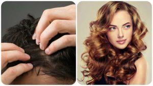 Las células madre, la clonación capilar, el láser y algunos medicamentos, pueden ayudar a recuperar el pelo.