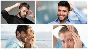 Algunas enfermedades en la piel pueden tener como consecuencia la calvicie o alopecia seborreica.