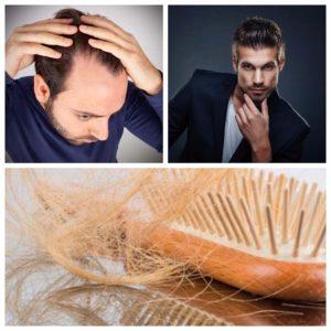La preocupación de los hombres por la calvicie y por recuperar el pelo se remontan a la época romana.