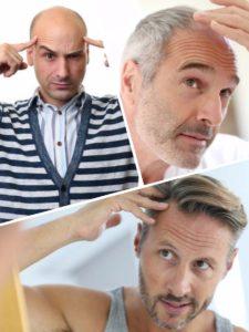 Con el bloqueo de la enzima DHT se puede conseguir en torno a un 20% de cabello más.