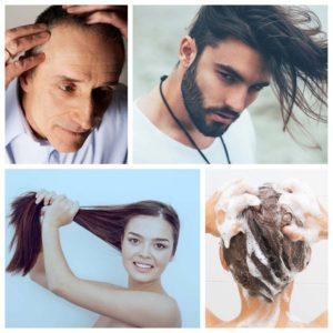 La alopecia seborreica es un problema de caída del pelo originado por un tipo de dermatitis.
