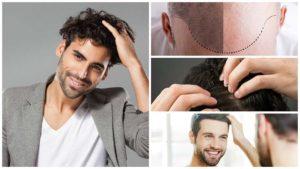 Si siendo muy joven el pelo comienza a caerse, es importante acudir al especialista para retardar la calvicie.