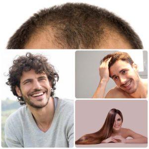 En el caso del implante capilar, existen distintas técnicas que ayudan a recuperar el pelo.