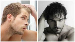 La alopecia androgénica afecta más a los hombres porque estos tienen niveles más altos de DHT y testosterona.