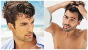 El método más demandado y efectivo para recuperar el cabello es el injerto capilar, pero no es el único.