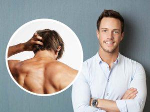 La DHT es la responsable de la alopecia androgenética que afecta a la mitad de los hombres.