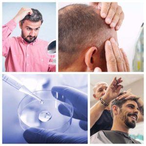 Rogaine es el nombre con el que se comercializa el Minoxidil, un producto utilizado para frenar la caída del pelo.