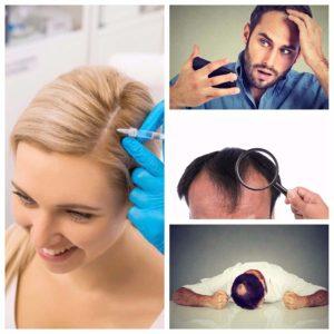 Las personas que sufren esta enfermedad en la piel, suelen perder más cabello en invierno.