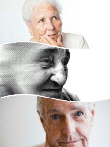 El Alzheimer es una enfermedad que requiere una serie de pruebas para llegar a su diagnóstico además de la propia exploración clínica