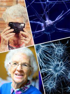 Los antioxidantes y algunas vitaminas ayudan a luchar contra el Alzheimer.