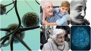 Es importante conocer la relación entre factores de riesgo cardiovascular y Alzheimer.