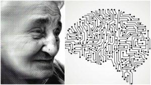 La acumulación de la proteína beta amiloide en el cerebro es una de las causas de muerte neuronal.