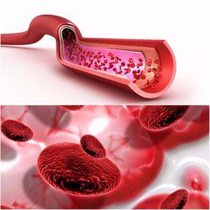 Un sangrado anormal se asocia con un problema de plaquetas bajas.