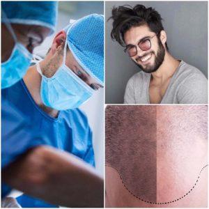 Si existe demasiado tejido cicatrizal deberá corregir el trasplante.