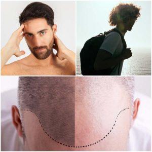 En ciertos casos es posible realizarse un rasurado parcial.
