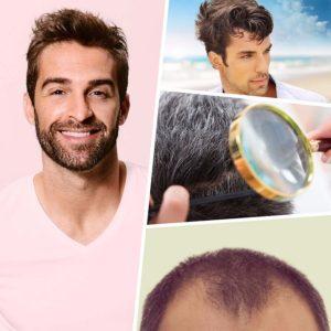 Los trasplantes de cabello pueden ser la mejor opción cuando se habla de restauración capilar.