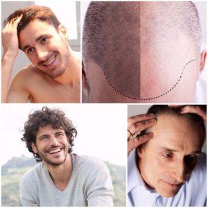 El pelo injertado crecerá al mismo ritmo que el resto de los cabellos.