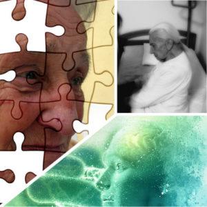 Cabe la posibilidad de que este trastorno se presente junto a la enfermedad de Alzheimer.