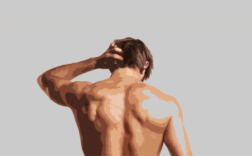 cicatrices tras un injerto capilar