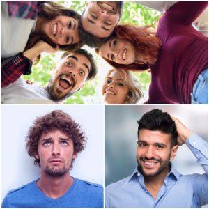 Realizar un injerto capilar con pelo de otra persona no es posible.