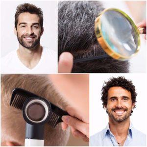 El trasplante de pelo debe realizarse con cabello del propio paciente.