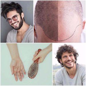 Las unidades foliculares se extraen de la cabeza del propio paciente, por lo que se evita el riesgo de rechazo del injerto de pelo.