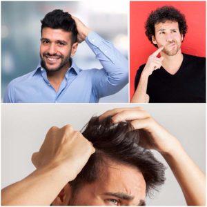 Hable con su cirujano capilar sobre cómo podrían ser los resultados del trasplante de pelo.