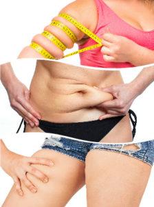 Brazos, abdomen y muslos son zonas que pueden tratarse en una liposucción.