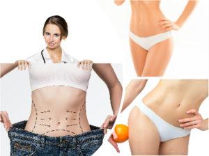 Normalmente, los resultados que se alcanzan con la liposucción son muy satisfactorios para sus pacientes.