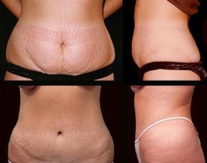 Los resultados se optimizan al combinar las intervenciones de liposucción y abdominoplastia.