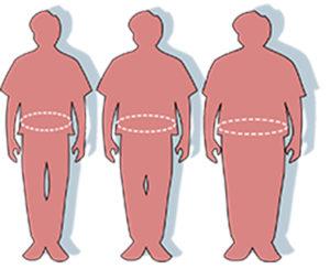 Las personas candidatas para la liposucción no han de presentar excesivos problemas de sobrepeso.