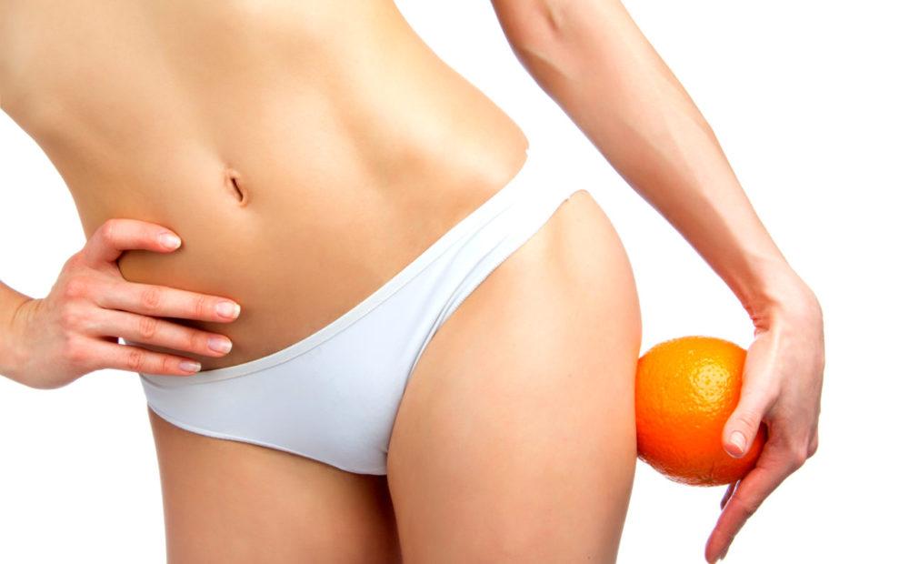¿La liposucción elimina la celulitis?