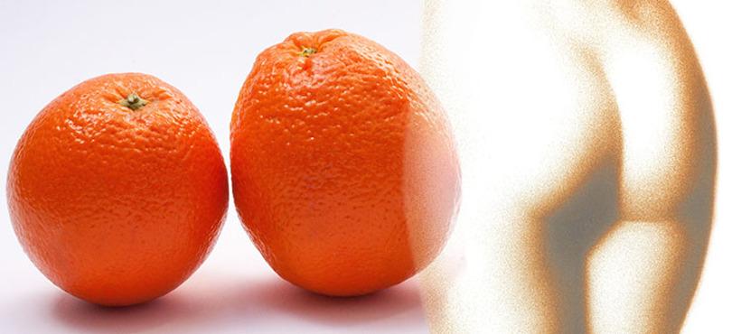 La celulitis es un trastorno de la piel, normalmente en mujeres, que provoca que se asemeje a la de una naranja.
