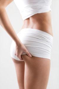 Existen distintas etapas de esta alteración, variando la efectividad de la liposucción en una u otra.