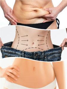 Las cicatrices tras una liposucción serán casi imperceptibles gracias a la experiencia y cualificación del cirujano.