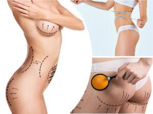La liposucción en todo el cuerpo siempre ofrece resultados bastante satisfactorios para sus pacientes.