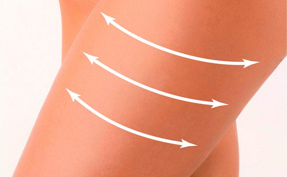 Diferencia entre liposucción y lipoescultura